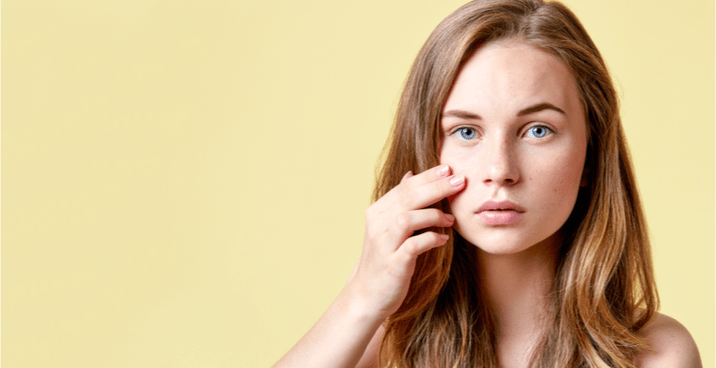 Here's Why Your Acne Won't Go Away