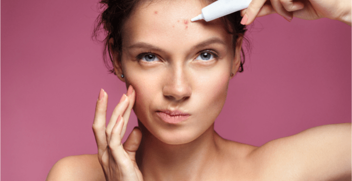 How to Get Rid of Forehead Acne: Doctors Explain