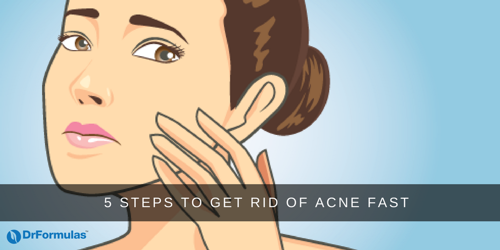 5 Steps to Get Rid of Acne Fast