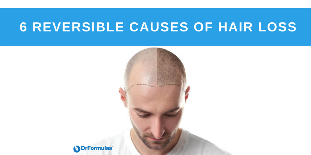 6 REVERSIBLE CAUSES OF HAIR LOSS