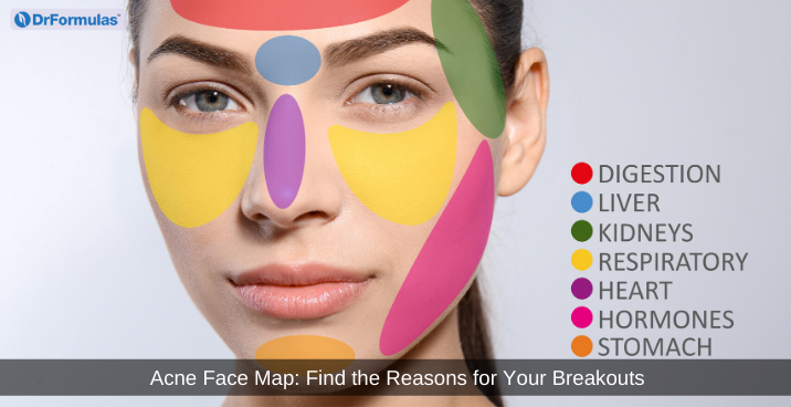 Acne Face Map: The Reasons for Your Breakouts | DrFormulas