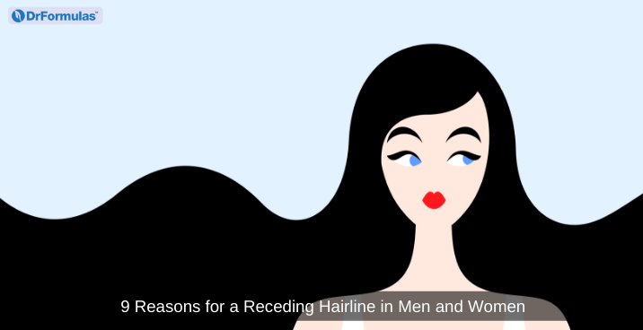 receding hairline women