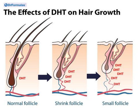 Is DHT the Cause of Male Pattern Baldness?