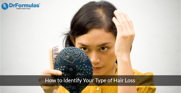 How to Identify Your Type of Hair Loss and Its Cause