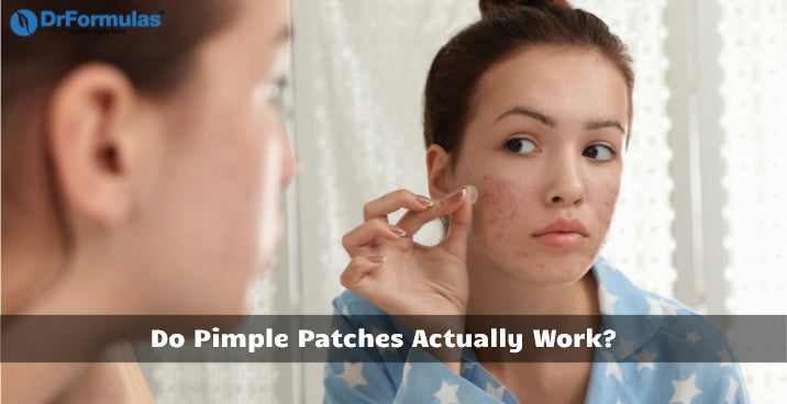 do pimple patches actually work