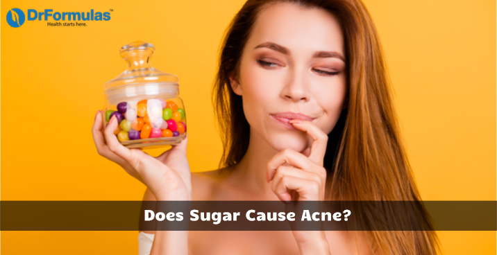 Does Sugar Cause Acne?