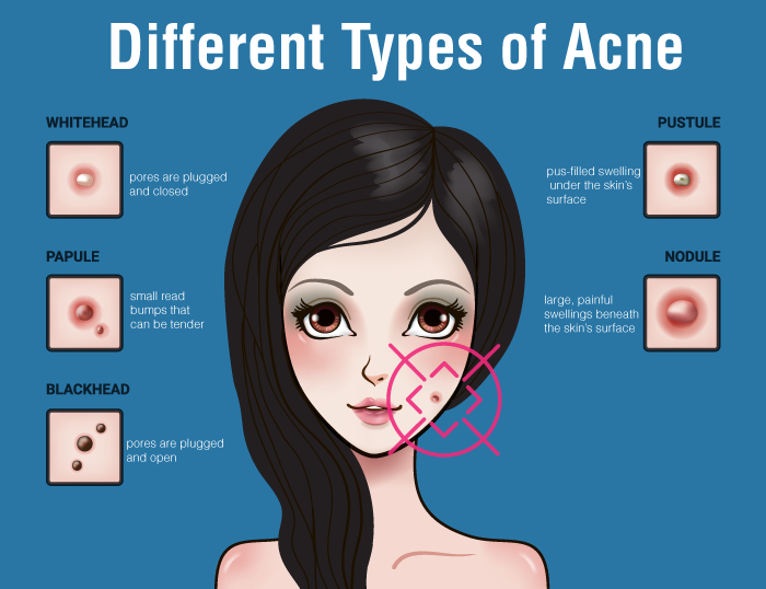 Different types of acne