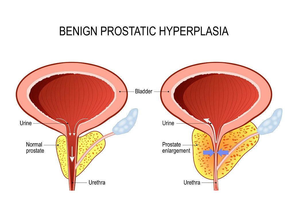 symptoms of an enlarged prostate