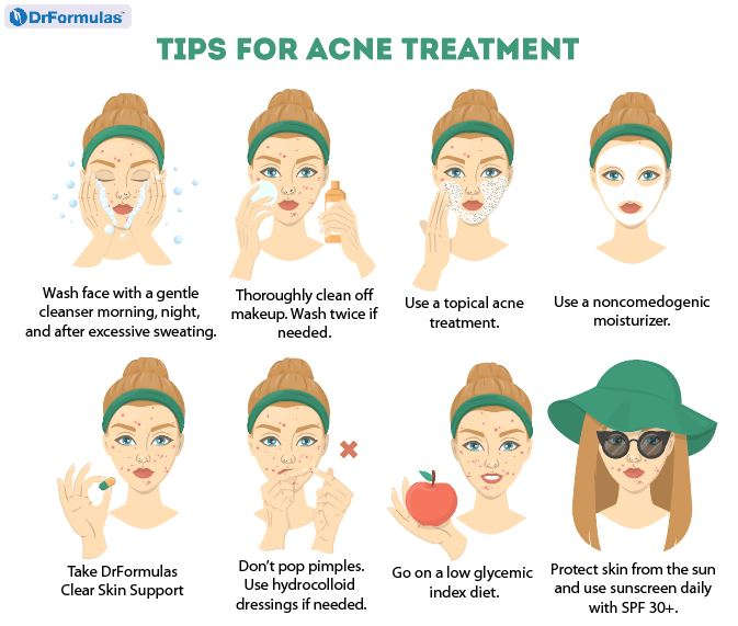 How To Get Rid Of Cystic Acne With 8 Home Remedies Drformulas