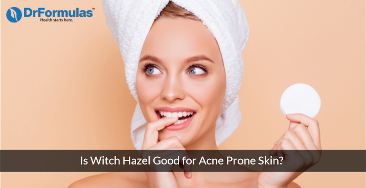 Is Using Witch Hazel Toner and Cleanser Good for Acne Prone Skin?