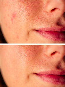 DrFormulas Cystic Acne Treatment | for Hormonal Acne and Scar Prevention, 1 Month Supply