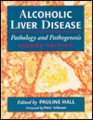 ALCOHOLIC LIVER DISEASE 2ED (Alcohol Liver Disease)