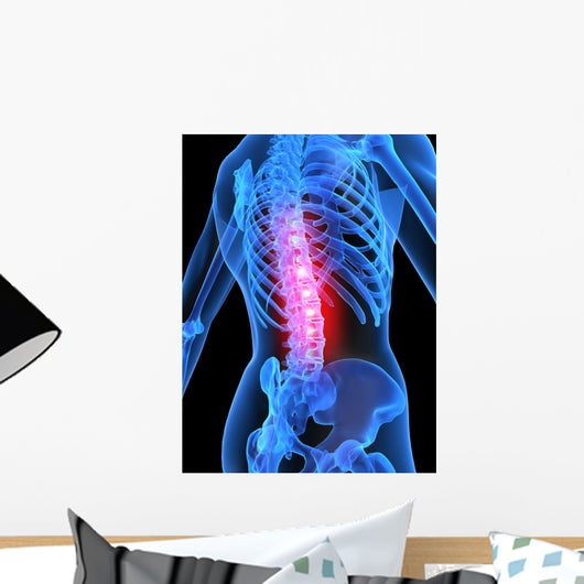 Skeleton with Back Pain Wall Mural
