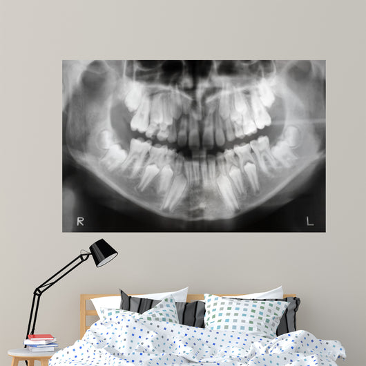 x-ray of jaw with teeth and milk teeth Wall Mural