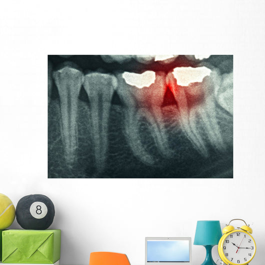 Dental Xray with Red Wall Mural