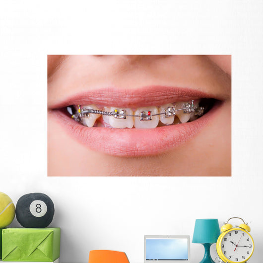 Mouth with brackets braces in medical concept Wall Mural