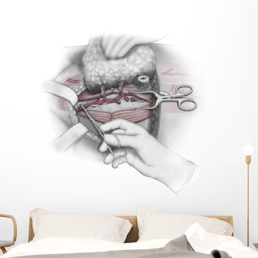 Color Illustration Depicting Third Wall Decal