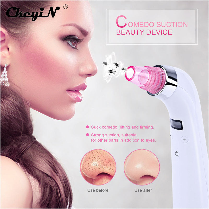 CkeyiN 4 Tips 5Level Skin Care Diamond Microdermabrasion Peeling Machine Facial Acne Pore Blackhead Vacuum Suction Beauty Device - blackhead-shop