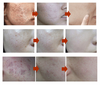 Image of Herbal Acne Anti Pimple Removel Cream $19.95/ MONTH