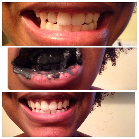 Charcoal Teeth Whitening Toothpaste $14.95/ MONTH