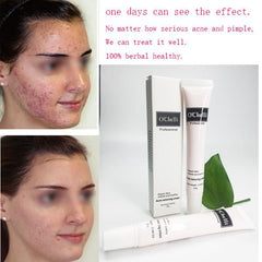 Herbal Acne Anti Pimple Removel Cream $19.95/ MONTH