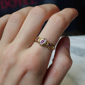 Edwardian Ruby &  Diamond Ring