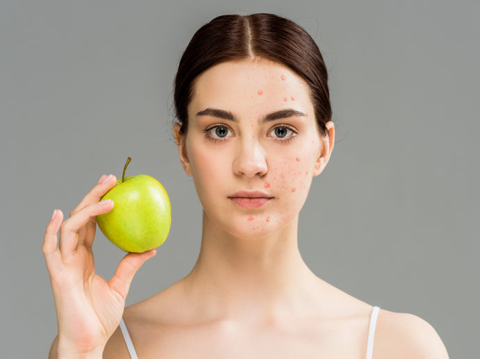 The 3 Best Vitamins for Fighting Acne