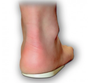 Heel Wedge - Chiropractic Supplies
