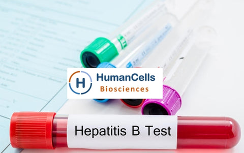 Hepatitis B (HBV) patient Leuko Pak / Whole Blood / Plasma / serum
