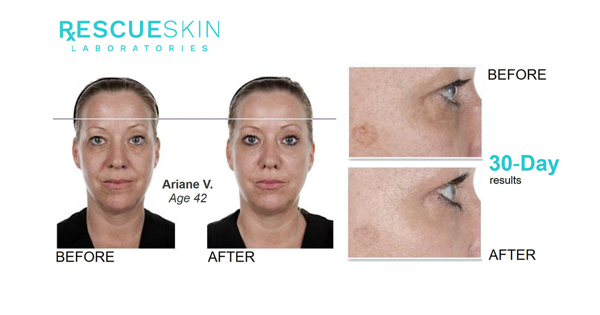 The RxESCUESKIN Results - Before and Ater Samples