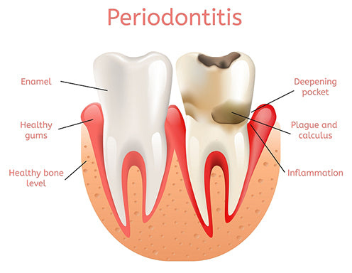 Periodontitis Inflammation