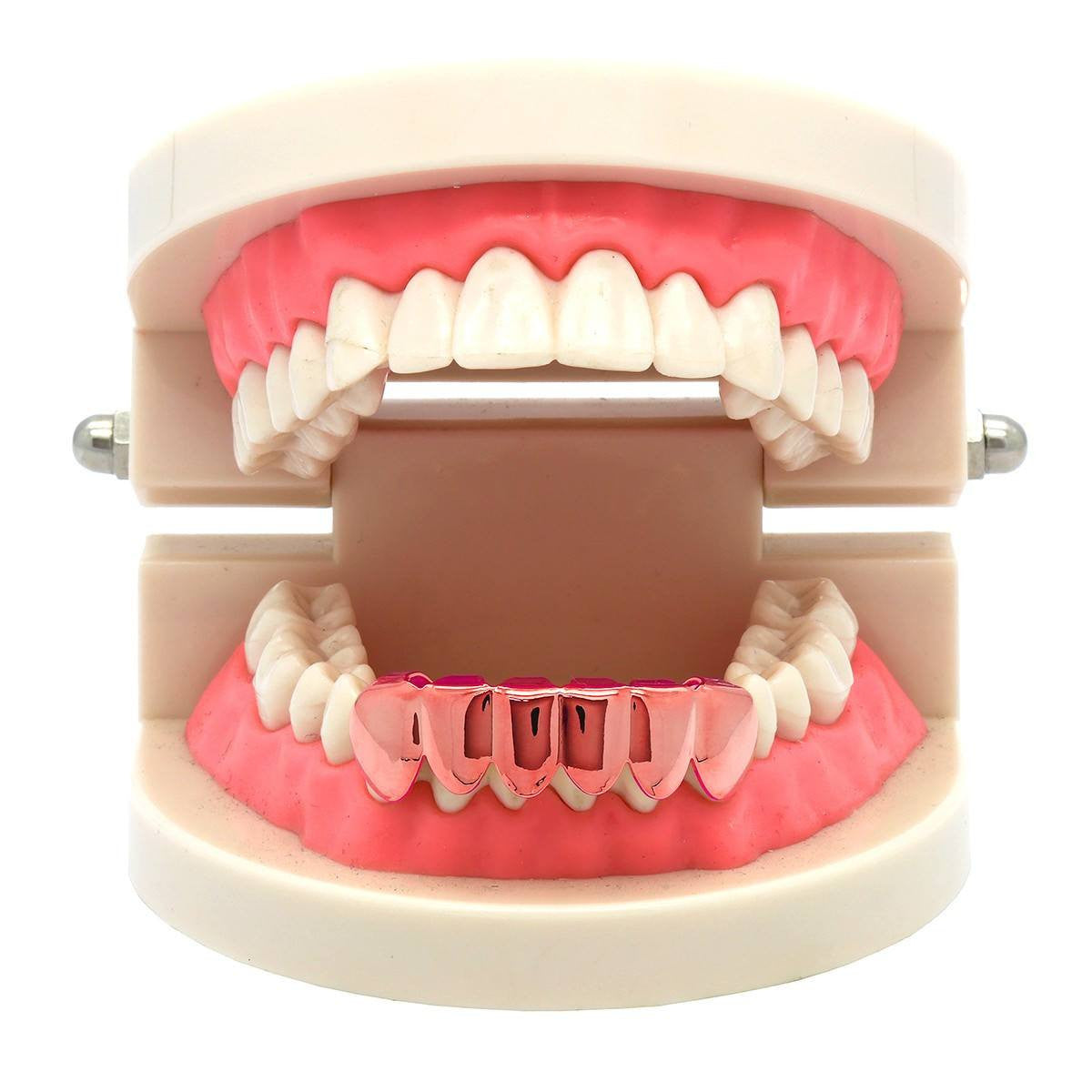 ROSE GOLD BOTTOM GRILLZ