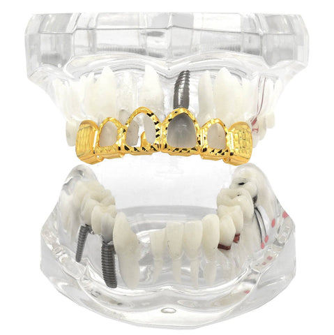 GOLD TOP GRILLZ 4 OPEN DIAMOND CUT