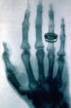 Radiograph of the hand of Albert von Kolliker first public demonstration of x-rays