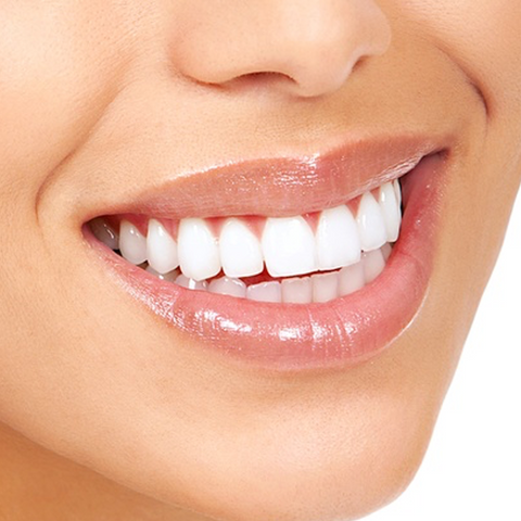 Bright White Smiles Non Peroxide Teeth Whitening Kit + Free Trays & 3 x Gel