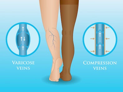 How Compression Socks Help Everyday Health