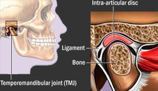 TMJD, TMJ, Temporomandibular Joint Disorder. What is cause of facial pain and headaches? Home remedies for tmj, How do you treat tmj, How to relieve tmj pain, Jaw pain remedy, Temporomandibular joint pain, Cure tmj naturally, Mandibular joint pain, Natural remedies for tmj,
