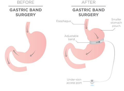 gastric band explained. shows a stomach diagram before agstric band surgery and shows a stomach diagram after the gastric band surgery. it details the laparoscopic band placement. visual comparison between the before and after stomachs of a gastric band procedure.