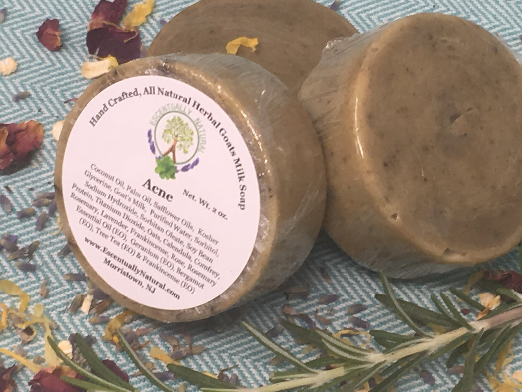 Acne Herbal Goat Milk Soap