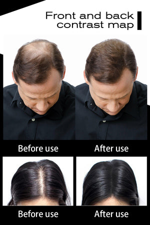 Hair Building Fibers - Hair Loss Treatment