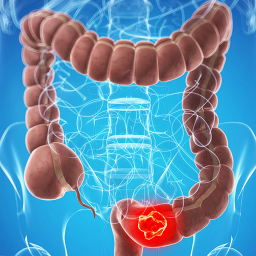 GenoTest® Oncologia: Colon retto