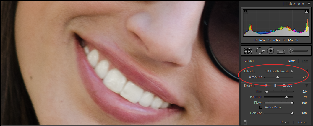 after teeth whitening in lightroom