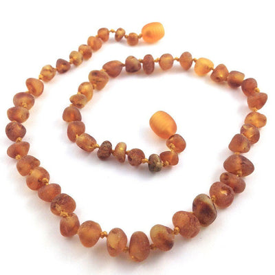 Baltic Amber Cinnamon Anklet