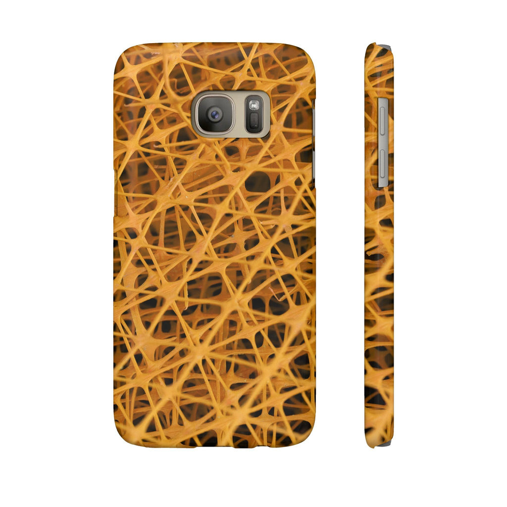 Yellow mesh Phone Cases