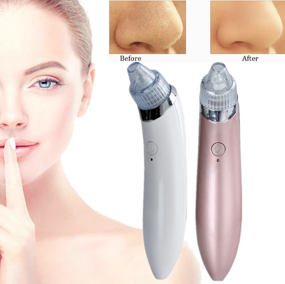 PREMIUM VACUUM BLACKHEAD REMOVER ( 70% OFF ONLY TODAY)