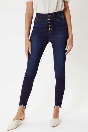 Super High Rise Button Fly Ankle Skinny Jeans