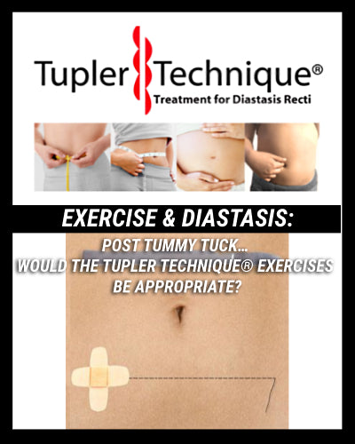 Post Tummy Tuck… Would the Tupler Technique® exercises be appropriate? | TUPLER TECHNIQUE®