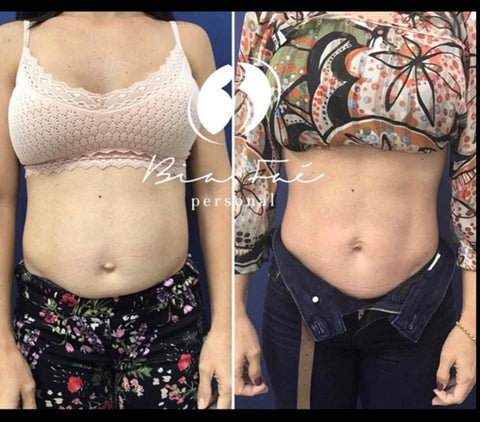 Belly Before and After Diastasis Treatment Sample 1