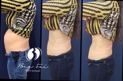 Belly Before and After Diastasis Treatment Sample 3