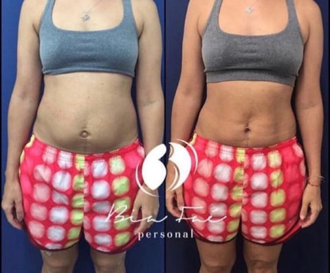 Belly Before and After Diastasis Treatment Sample 4